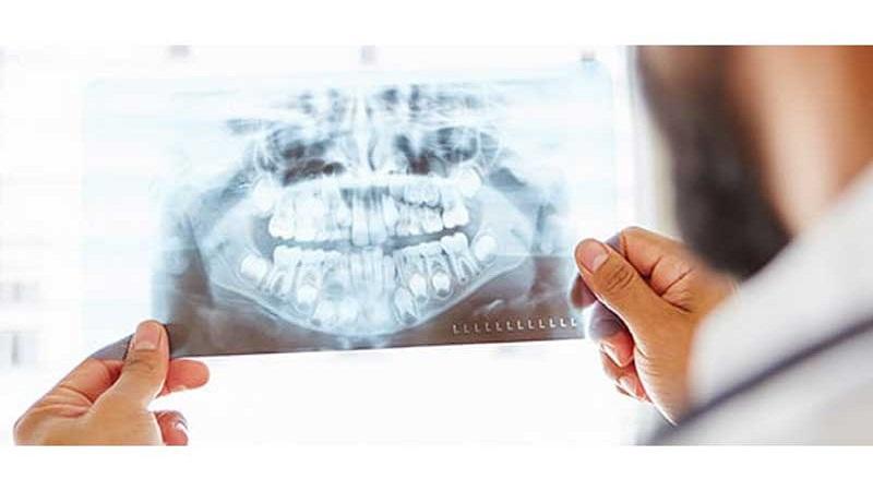 نقش رادیولوژی در تشخیص سرطان های دهان