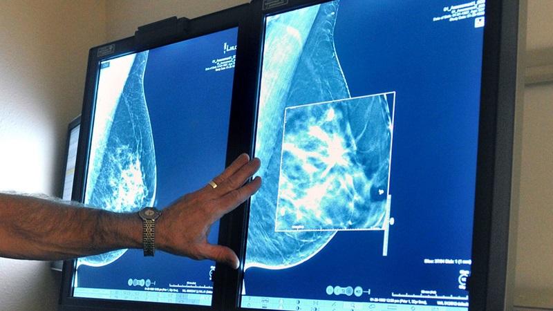 نکاتی برای انجام ماموگرافی سینه