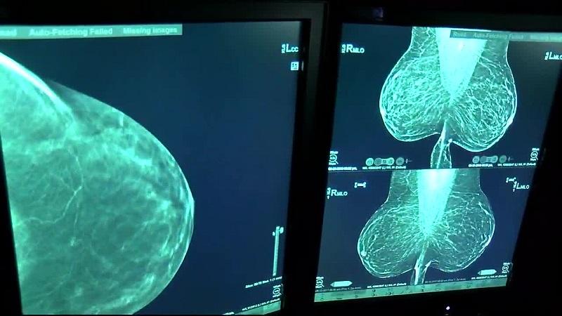کاربرد ماموگرافی برای تشخیص سریع سرطان پستان