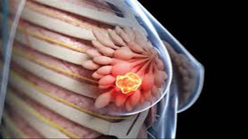 سرطان پستان در زنان کمتر از 40 سال | سونوگرافی پستان اصفهان